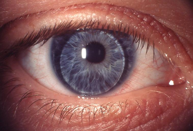 ring zwischen pupille und iris normal